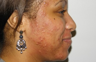 home made recipes for acne- on Kamdora.com-Kamdora