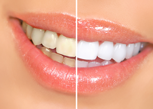 teeth-whitening-dentist