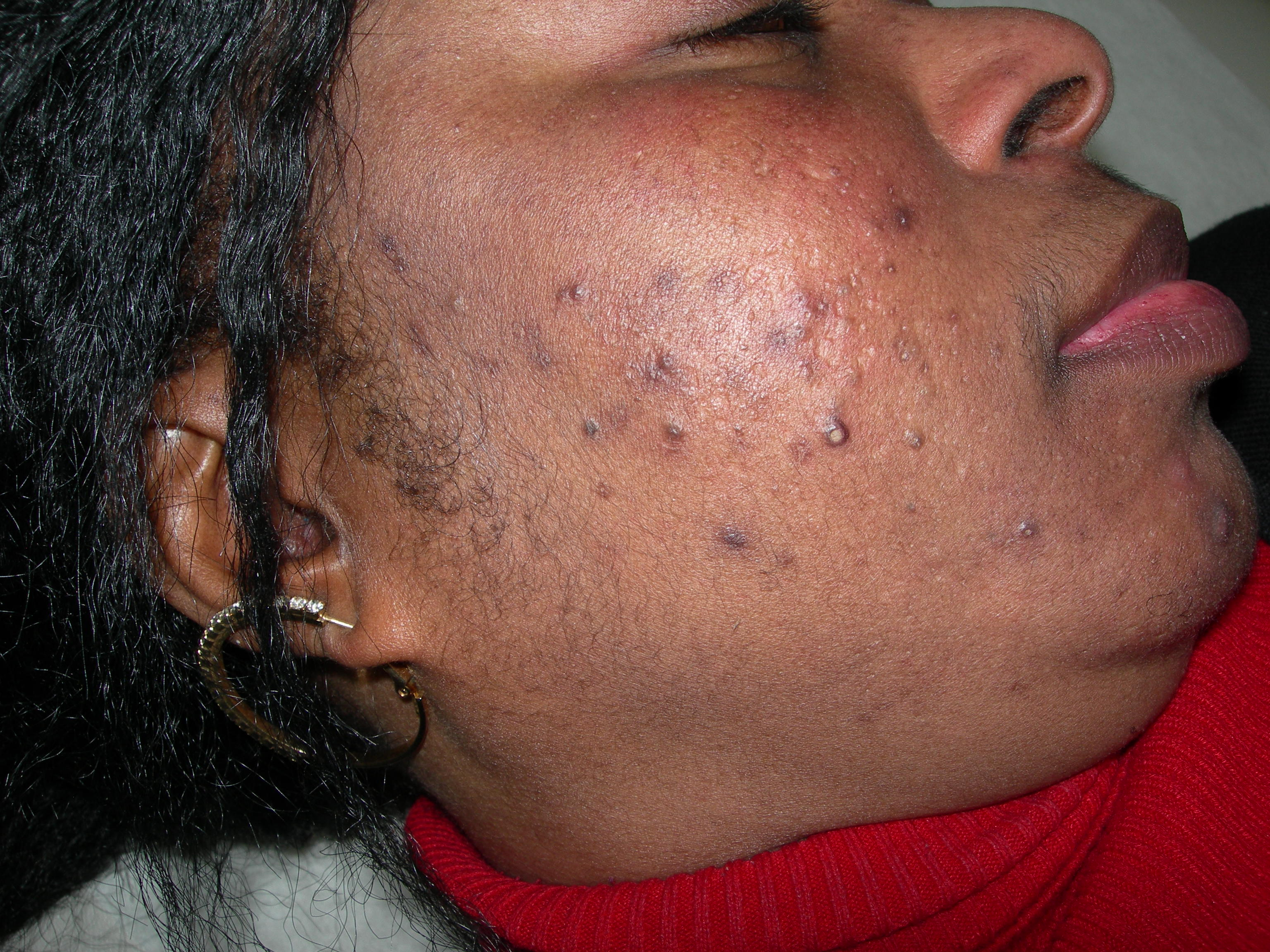 How To Get Rid Of Pimples Kamdora