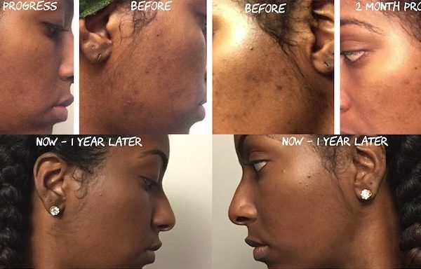 acne scars2