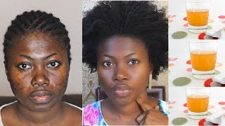 you will never have dark spots again